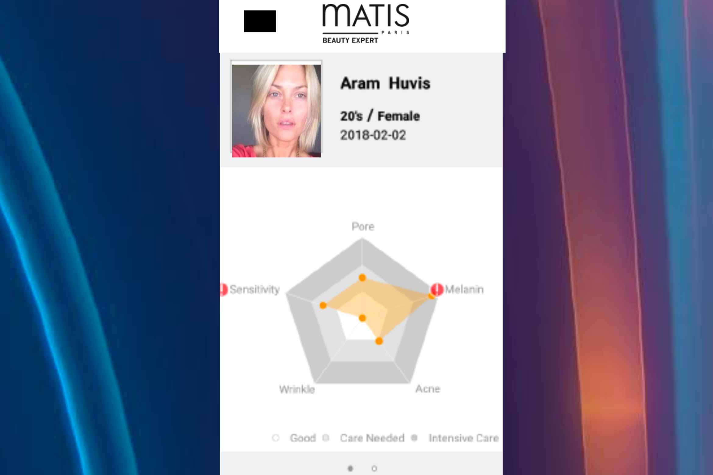 matis-skin-analyzer-2