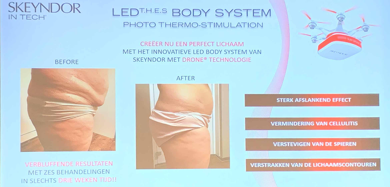skeyndor-led-body-system-1