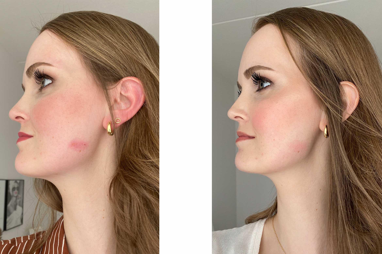 huid gezicht verbrand krultang stijltang tips